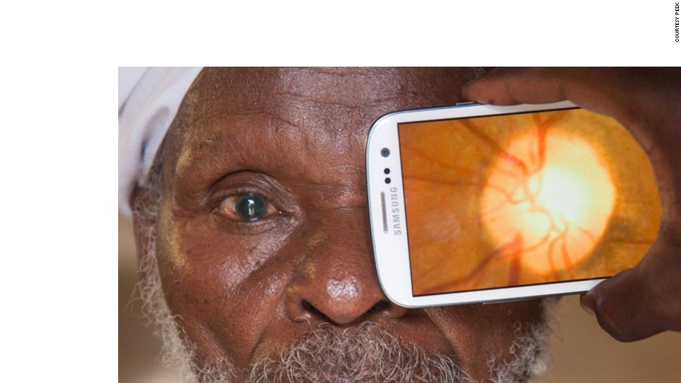 The Portable Eye Examination Kit (Peek) app allows healthcare professionals to conduct eye examinations using a smartphone app. It has already been tested on thousands of people in rural Kenya. There are 39 million blind people globally, and in low-income countries, 80% of blindness is curable.<br />