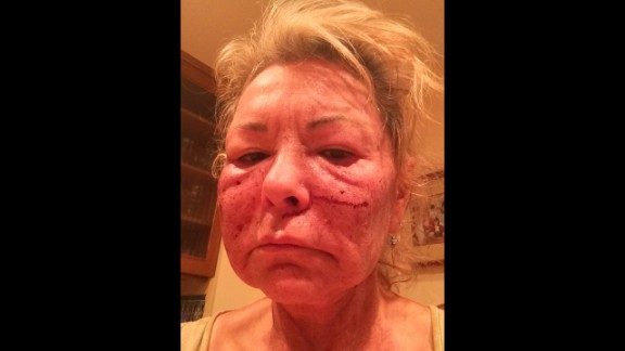 """""""Got a chemical peel to look more sexier,"""" tweeted comedian Roseanne Barr on Tuesday, November 25. """"Joked about tussling Cosby."""""""