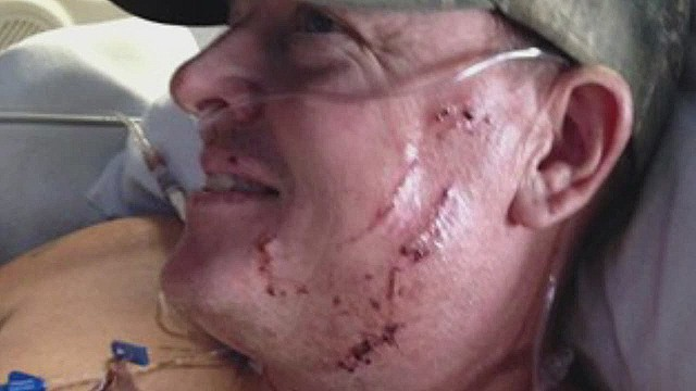 dnt kare man survives bear attack_00011020.jpg