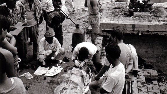 Onlookers watch as Shanker Twayana, head technician of the Tilganga Institue Eye Bank, extracts the corneas from the donor on the banks of the Bagmati river in Nepal in 2000.