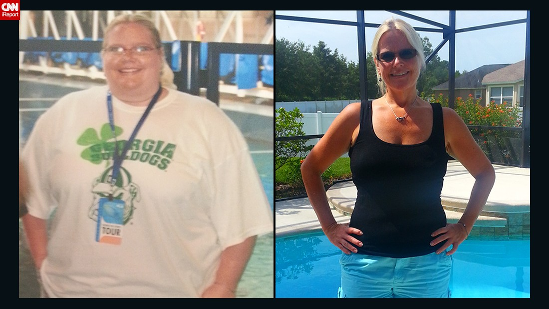 "<a href=""http://www.cnn.com/2014/09/22/health/weight-loss-jen-corn-irpt/"">Jen Corn</a>'s family offered to pay for weight-loss surgery, but she decided to change her lifestyle on her own. She joined Weight Watchers and has lost more than 150 pounds since 2011. She walks 5 miles a day and is signed up to walk her first half-marathon this year."