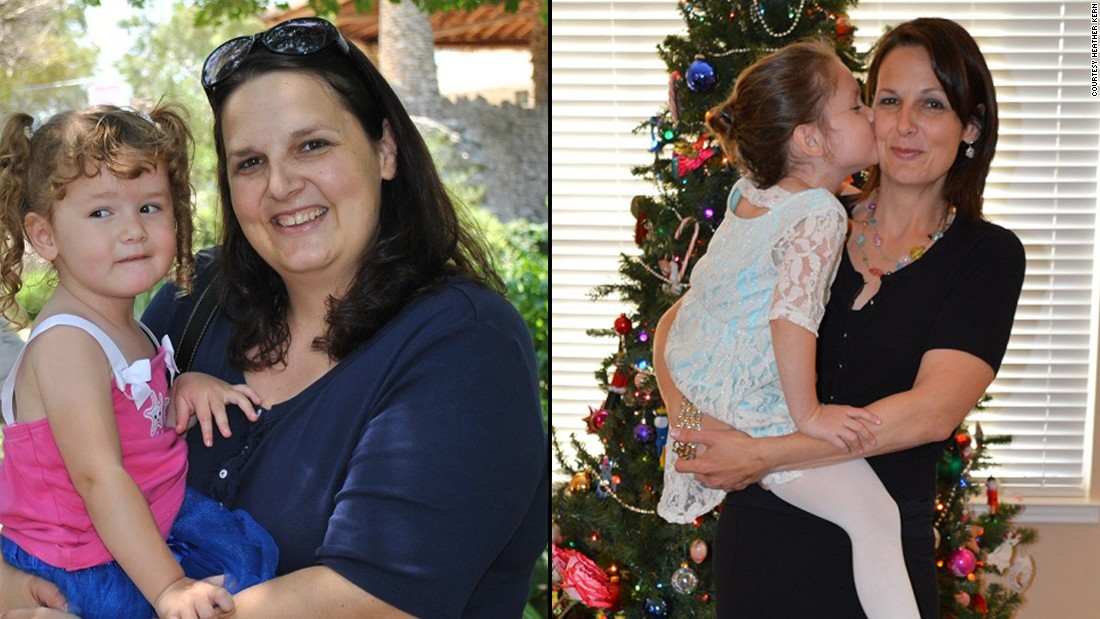 "Despite having congenital heart disease, <a href=""http://www.cnn.com/2014/01/20/health/weight-loss-kern-irpt/"">Heather Kern</a> didn't give up on her weight-loss journey. Nearly three years and more than 100 pounds later, she is working on her personal  training certification and her heart ""is the strongest it has been in seven years."""