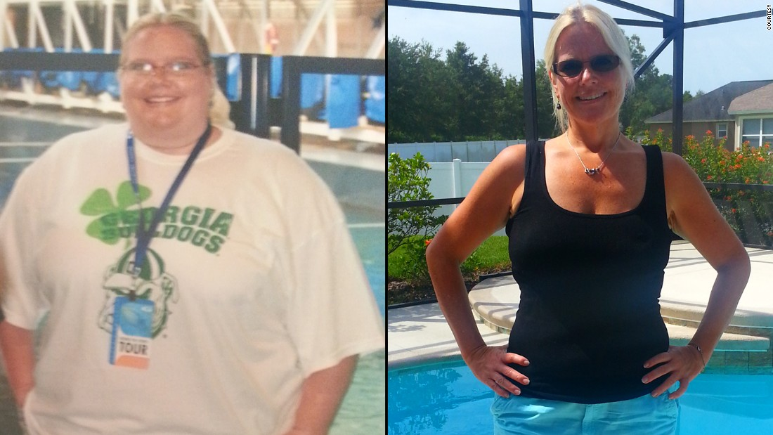 "<a href=""http://www.cnn.com/2014/09/22/health/weight-loss-jen-corn-irpt/"">Jen Corn</a>'s family offered to pay for weight-loss surgery, but she decided to change her lifestyle on her own. She joined Weight Watchers and has lost more than 150 pounds since 2011. She walks five miles a day and is signed up to walk her first half-marathon this year."