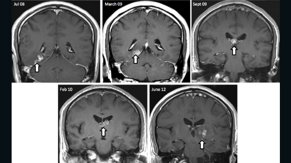 After four years, the British patient returned to hospital in pain to find his brain lesion had migrated to a new region of the brain resulting in new symptoms, including seizures. His MRI scans show the tapeworm's burrowed migration through the brain over four years.