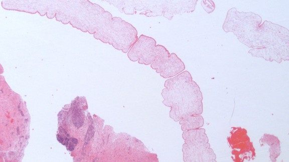 This was the first occurrence of Spirometra erinaceieuropaei in the UK but the infection is more common in China, South Korea, Japan and Thailand. This microscope image shows the worm (center) on a slide after being removed from the patient.
