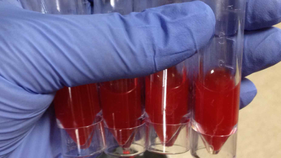 Images of test results, symptoms, X-rays and scans can be posted for consultation from a global pool of experts as well as to train others using the app. Here, a photo of red cerebrospinal fluid is uploaded. Blood in the fluid may be a sign of bleeding or spinal cord obstruction.