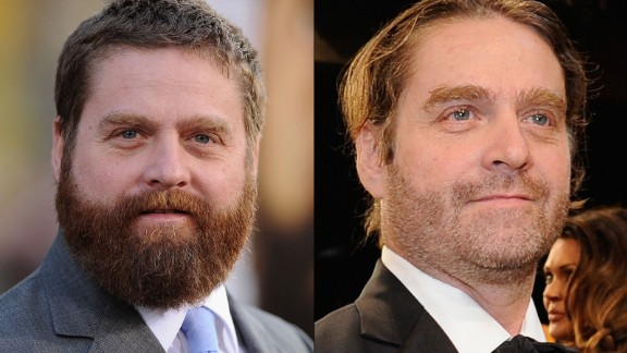 The transformation of Zach Galifianakis continued at the Screen Actors Guild Awards in January 2015, where the actor was barely recognizable from years past. What a difference some pounds and some facial hair can make. He first started slimming down in 2013, when he decided to stop drinking.