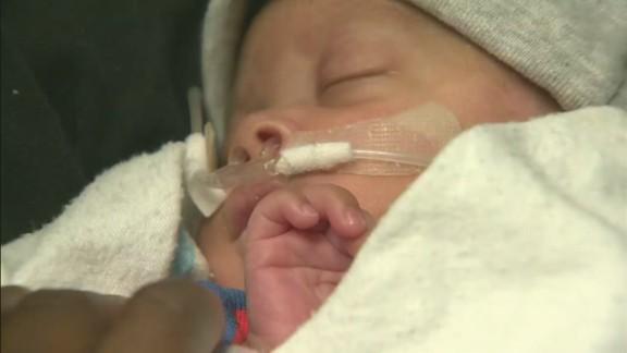 pkg baby born in amniotic sac_00000823.jpg