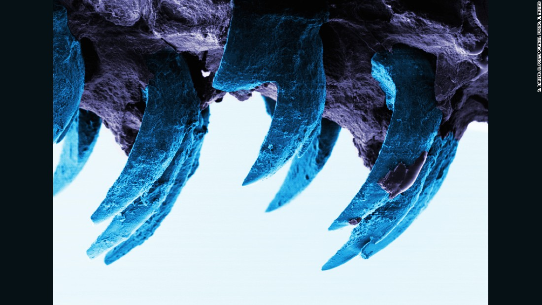Browse through scanning electron microscope images of rows of limpet teeth, discovered by UK researchers to be the strongest substance known to man.