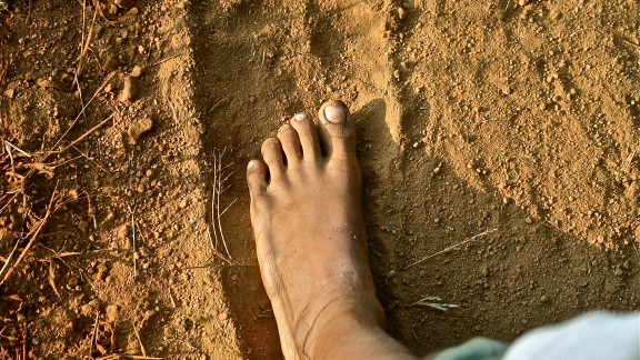 The swelling of body parts is caused by adults forms of parasitic filarial worms, which form nests in the lymph vessels and lymph nodes of the body causing swelling. India has the greatest burden of lymphatic filariasis in the world and a new national campaign was launched in December 2014 to deliver 400 million tablets to communities at-risk of infection.
