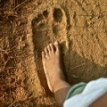 elephantiasis foot comparison