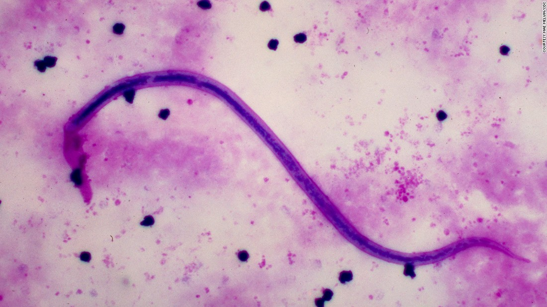 The majority of cases are caused by the parasitic worm Wuchereria bancrofti -- responsible for 90% of cases -- and is called lymphatic filariasis.
