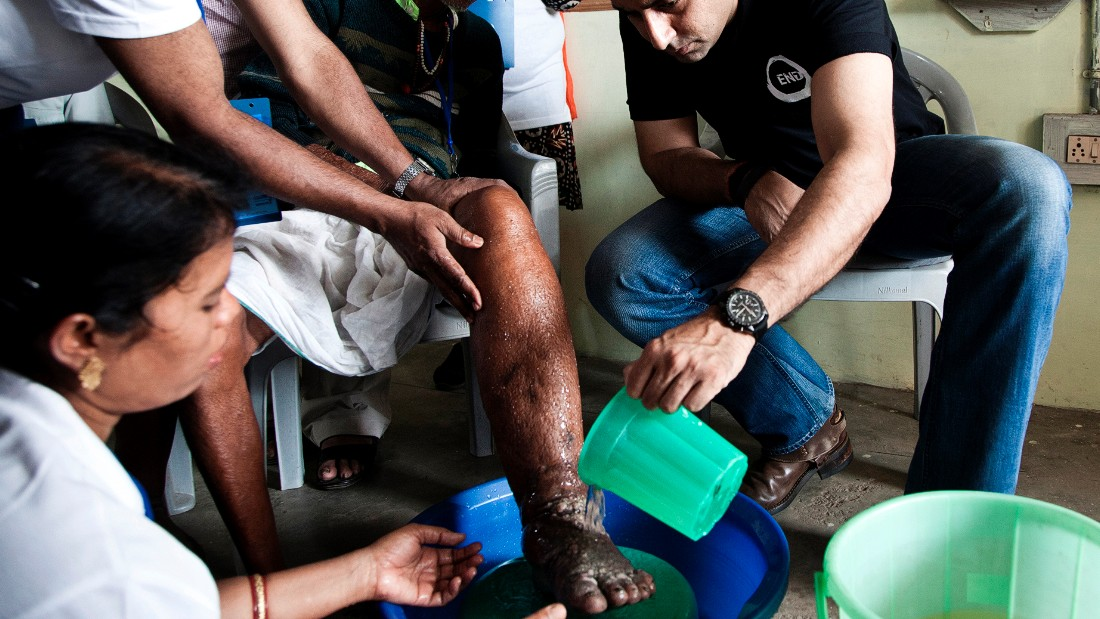 The only option once patients have the severe swelling characteristic of elephantiasis is to manage symptoms by draining fluid where possible or else to keep limbs and wounds clean.