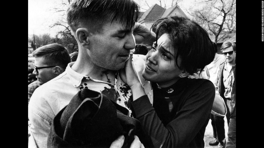 Harriet Richardson, a student activist, presses a cloth to the wounds of bloodied poet Galway Kinnell in Selma.