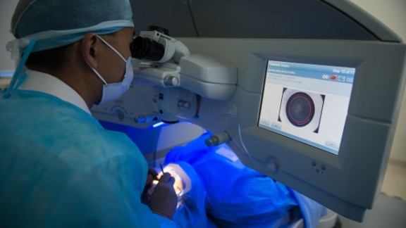 Unlike Lasik surgery, pictured above, the patient would be able to undergo the whole procedure seated in a chair. Critics say the procedure may carry the risk of glaucoma, but the company says the particles released by the process are too small to create eye health problems.