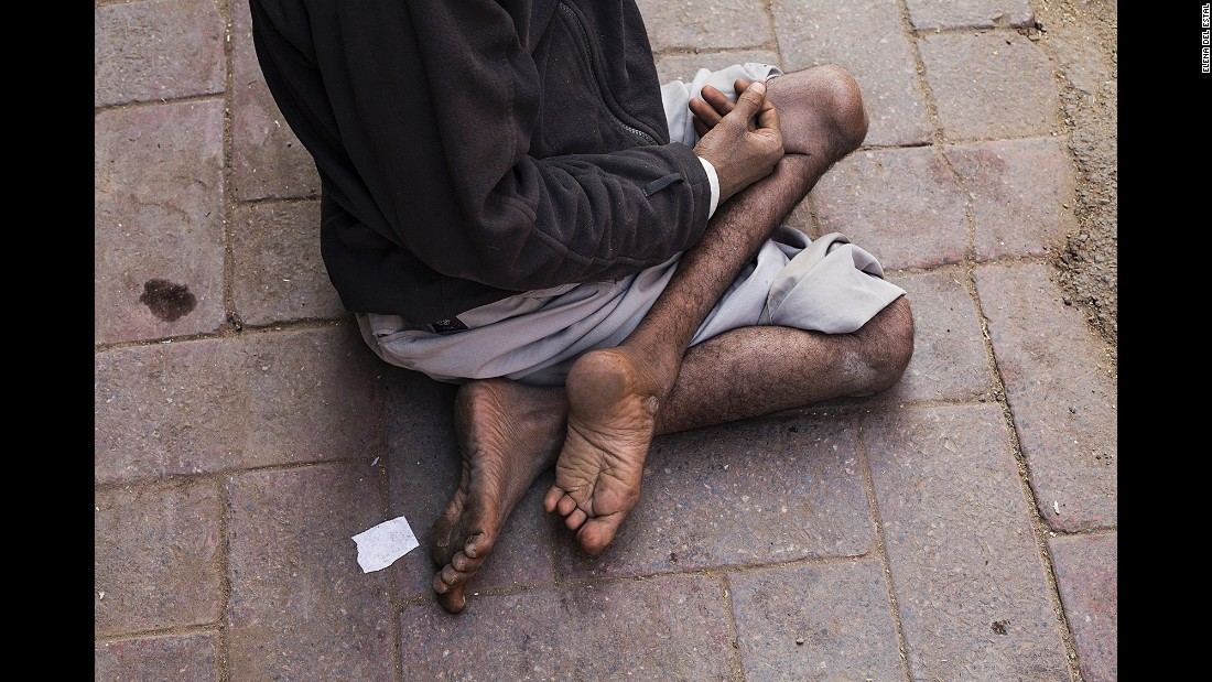 Emtiach lies on a street in New Delhi, begging for money in November. His left leg is thin and powerless because of polio. He came to the city from Bihar, one of the states that used to be most affected by polio. His wife is also affected by the disease.