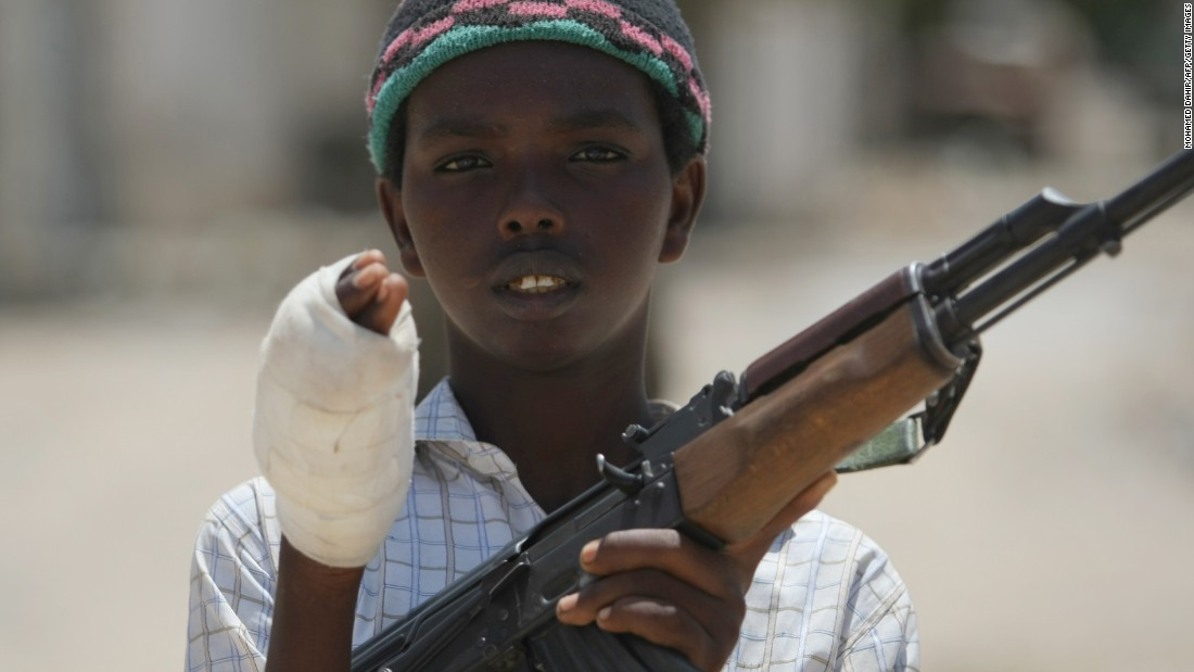 A young fighter from the Al-Shabaab militia shows his wounded hand after battling Somali government forces in Mogadishu in July 2009.