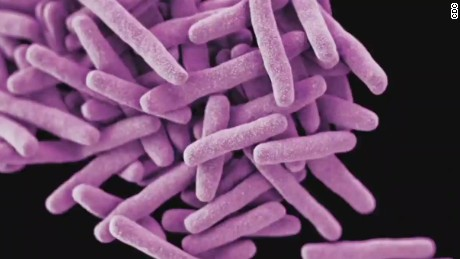 CDC tracking path of rare Tuberculosis patient