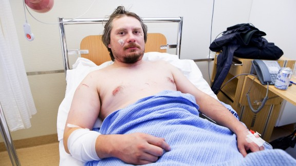 Jakub Moravec lies in his hospital bed after being attacked by a polar bear while sleeping in a tent.