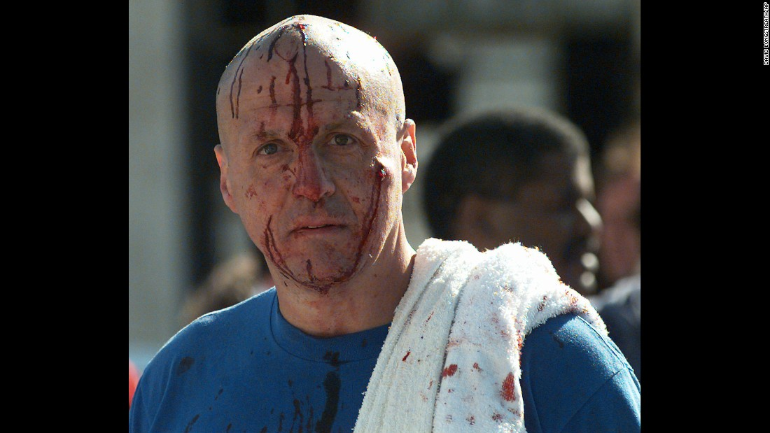 A man's face is covered with blood in the aftermath of the deadly bombing.