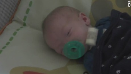 pkg baby born without nose_00012418.jpg