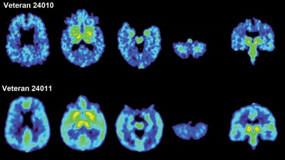 Living brain scans of Tommy Shoemaker and Shane Garcie