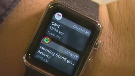 Is the Apple Watch a must have?