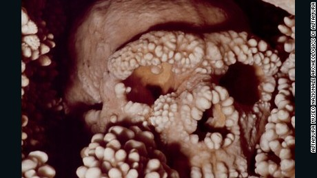 Neanderthal who fell into a well gives scientists oldest DNA sample