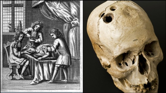 Dating back before ancient Roman and Greek times, according to Totelin, holes were drilled into human skulls to relieve a range of ailments from migraines to head injuries.   The practice -- known as trepanation -- is considered by experts to be the oldest form of neurosurgery.  Its original use was to relieve pressure, reduce swelling and also enhance overall bloodflow in the brain and improve well-being.  The premise behind the practice is still used by neurosurgeons today to reduce swelling and pressure in the brain before, or after, surgery.