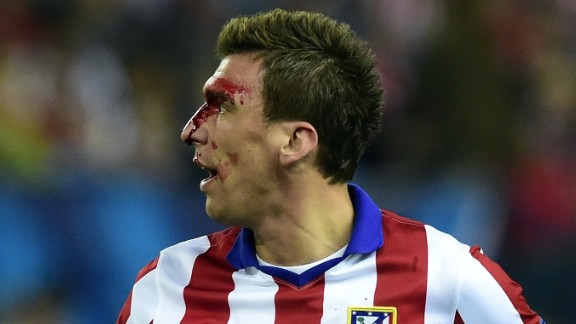 Mario Mandzukic was left with blood streaming from his face after a second half clash with Sergio Ramos.