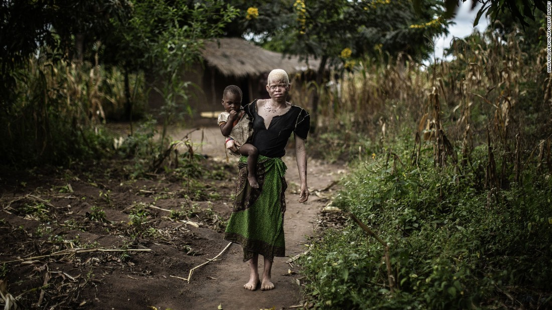 Mainasi Issa, a 23-year-old albino woman, carries her 2-year-old daughter, Djiamila Jafali, outside her hut in the Machinga district of Malawi on Friday, April 17. Six albinos have been killed in the African nation since December, according to the Association of Persons with Albinism in Malawi.