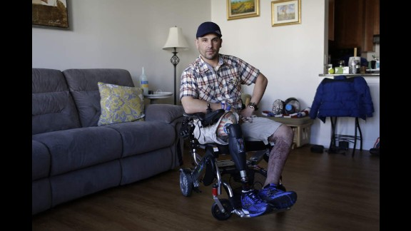 Marc Fucarile was at the marathon with friends, and was struck by hot shrapnel from the second bomb. His pants caught fire, and he suffered burns over 90% of his lower body. His belt buckle was so hot, it burned his hand when he tried to undo it. One leg was blown off at the scene, and he's still trying to save the other, but might not win that battle, he said. He's had more skin grafts than he can remember.