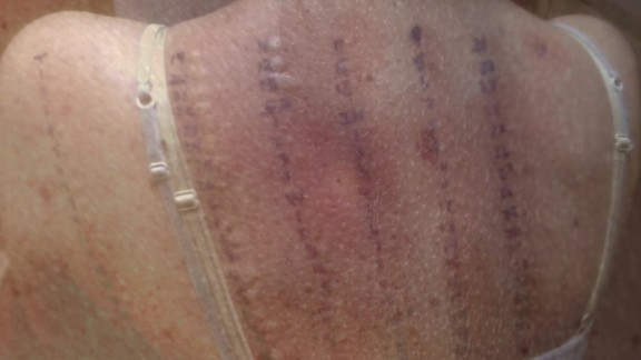 orig allergic to life brynn duncan mast cell activation syndrome_00005726.jpg