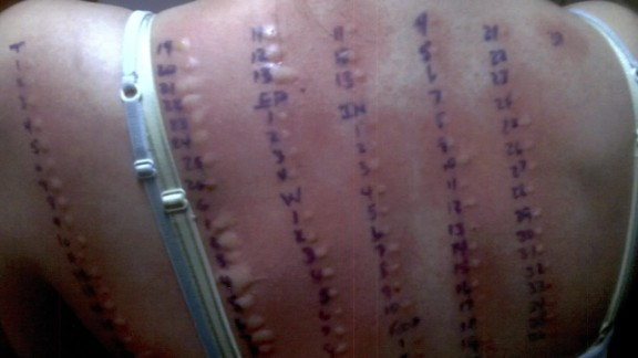 orig allergic to life brynn duncan mast cell activation syndrome_00010110.jpg