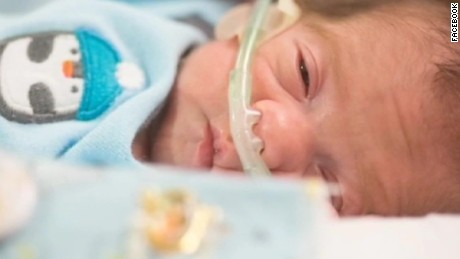 dnt baby born after mothers fatal brain bleed_00004820