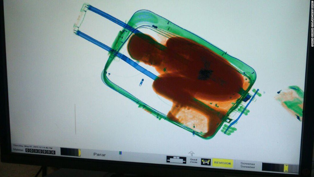 This X-ray image, provided by Spain's Civil Guard, shows an 8-year-old boy from sub-Saharan Africa hidden in a suitcase on Thursday, May 7. A 19-year-old woman carried the suitcase as she entered the Spanish enclave of Ceuta near Morocco.