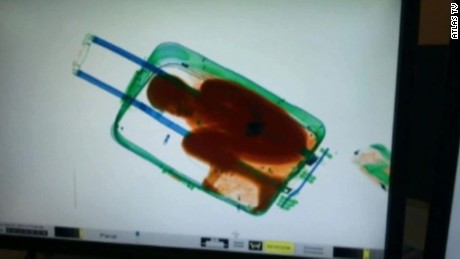 This x-ray shows the boy, 8, hiding in the suitcase, according to officials.