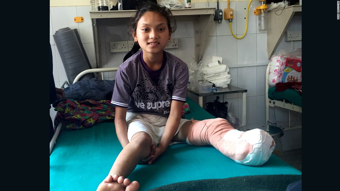 Maya is recovering well, but it's hard to say how she will fare once she returns home to her village in Nepal's Gorkha District, where the terrain is hilly and medical facilities are basic.