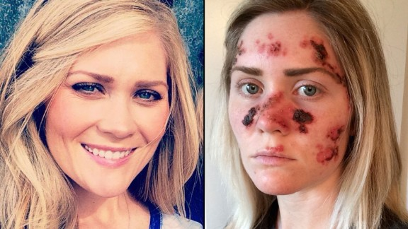 Tawny Willoughby used a tanning bed 4 to 5 times a week in high school. Now, at 27, she's dealing with painful skin-cancer treatments.