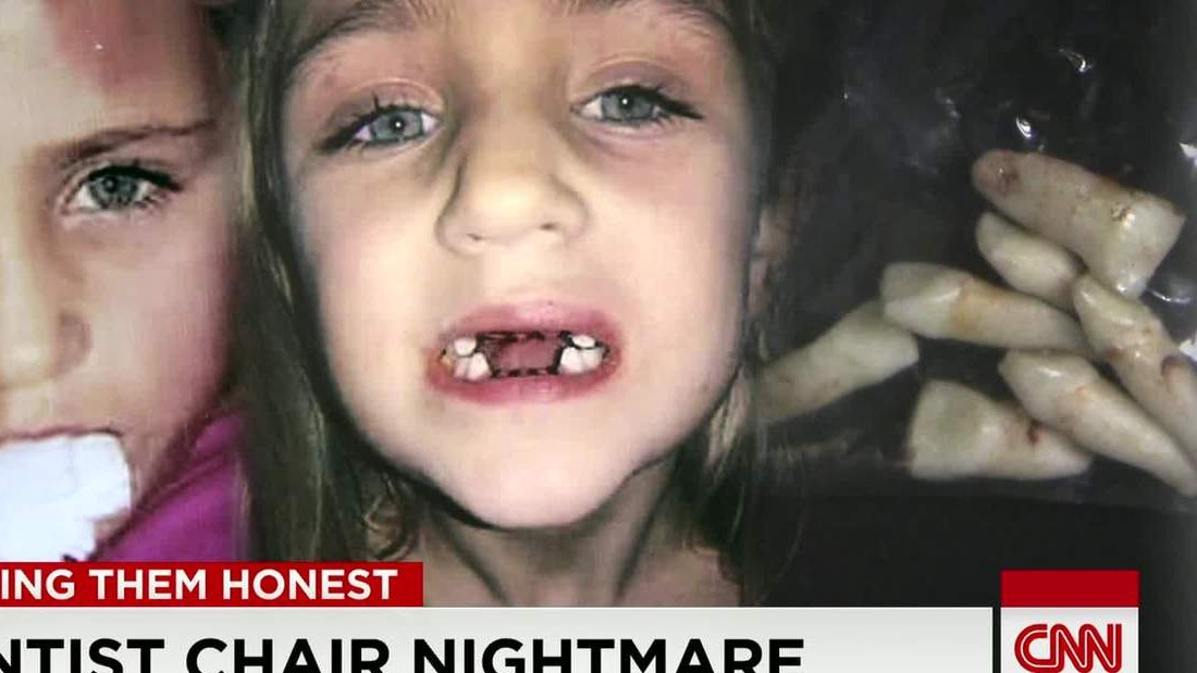 Kid Getting Tooth Pulled Out