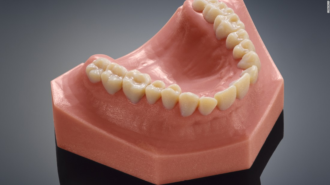 Printed horns will be followed by printed teeth for humans, as with this set from Stratasys.