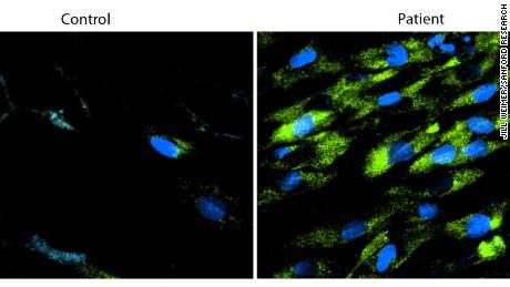 Cells from patients with Batten disease (right) have defects in their ability to clear waste products (green), and this waste builds up inside the cells. Cells from healthy family members (left) have lower levels of waste accumulation. The blue represents the nucleus in each cell.