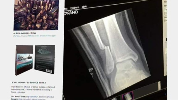 foo fighters dave grohl breaks leg_00003226.jpg