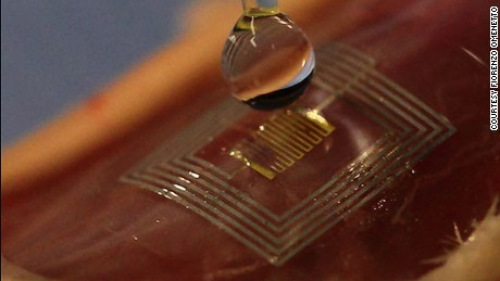 This healing silk 'microchip' could be implanted under the skin.