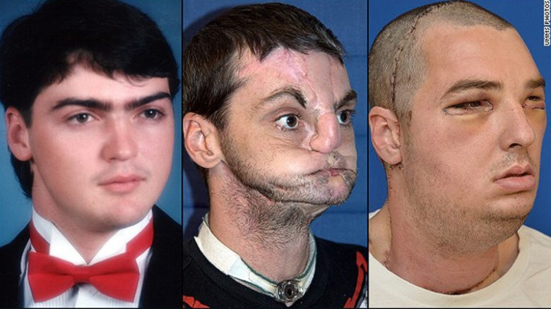 Facial disfigurement in