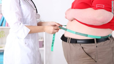 1 in 5 people will be obese by 2025, study says