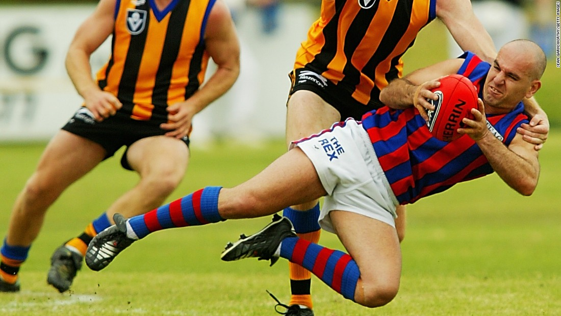 In 2002, Australian rules player Peter Filandia was suspended for 10 matches after pleading guilty to biting an opponent's testicles. The incident occurred as Filandia's Port Melbourne played Springvale in the Victorian Football League. The victim suffered a perforated scrotum, with Filandia telling a tribunal that he bit as a reflex action after becoming trapped in a melee.