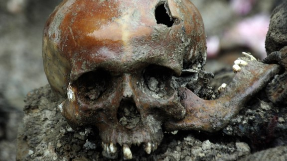 A broken skull lays exhumed in a newly discovered mass grave site in the village of Budak, just a few hundreds meters away from the Memorial Center of Potocari, near the eastern Bosnian town of Srebrenica, 11 July 2007.