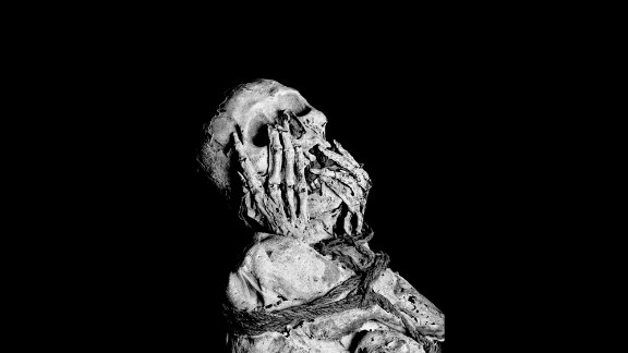 This mummy was found in the Lagoon of the Condors, also known as the Lagoon of the Mummies, in northeastern Peru.