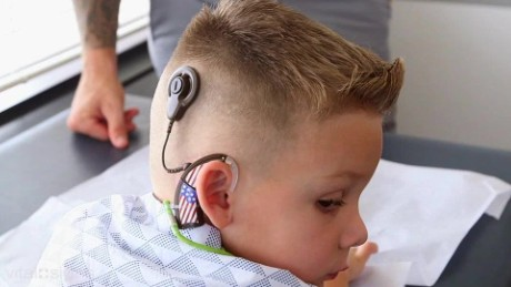 Young boy gets 'bionic ear'